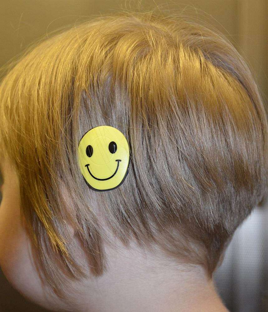 Der Kopf eines Mädchens von schräg hinten, über dem Ohr klebt ein Smilie, unter dem sich ein Hörimplantat verbirgt